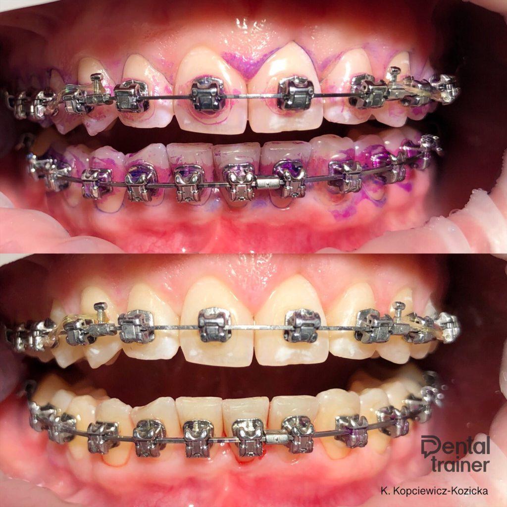 Higienizacja pacjenta ortodontycznego